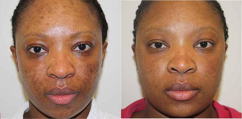 elixclear tache visage
